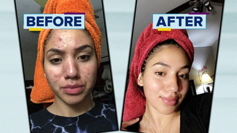 Witch Hazel for acne scars How to get rid of acne scars with Witch Hazel Witch Hazel for acne scars How to get rid of acne scars with Witch Hazel new images