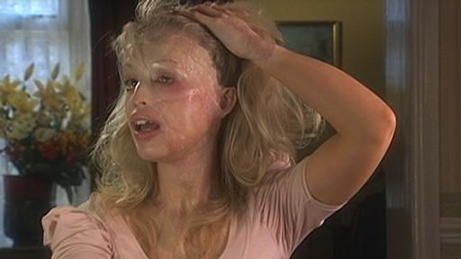 acid attack disfigures british model video abc news