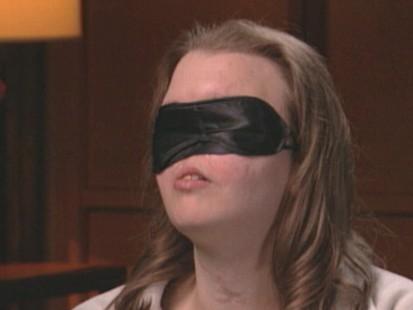Blind Love: The Life of Chrissy Steltz