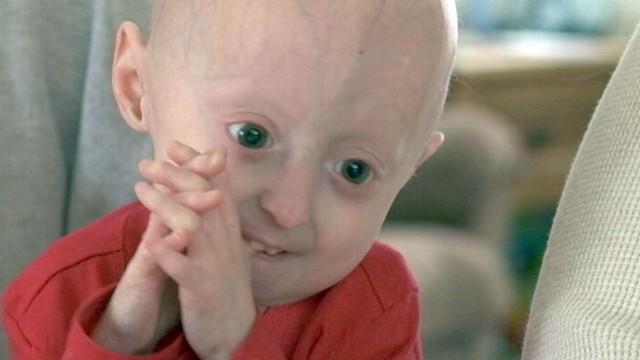 604593efa20ff Children Living With Progeria: Inside Their World - ABC News