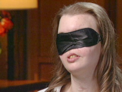 VIDEO: In shotgun accident 11 years ago, Chrissy Steltz, 16, lost much of her face.