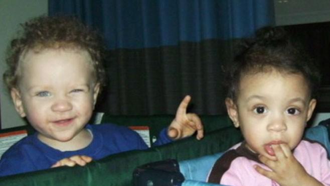 black twins born to white parents