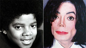 Michael Jackson's Many Facelifts - ABC News
