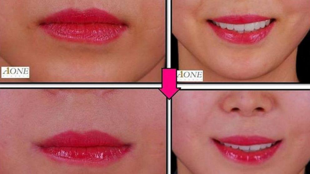 Joker Lips Surgery In South Korea Creates Perma Smile Abc News