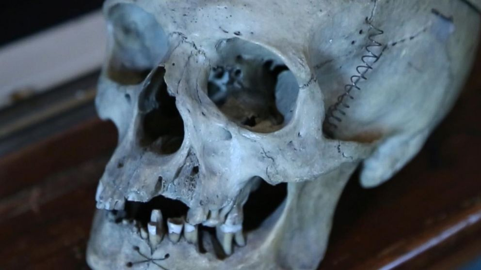 Spooky Finds at the Museum of Morbid Anatomy Video - ABC News