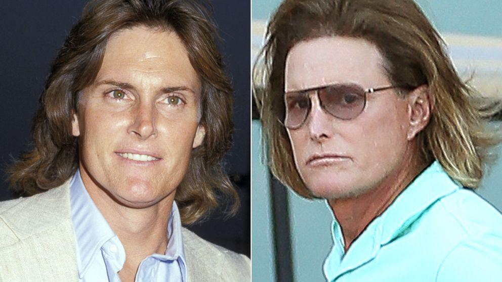 Details Of Bruce Jenner S Evolving Look Abc News