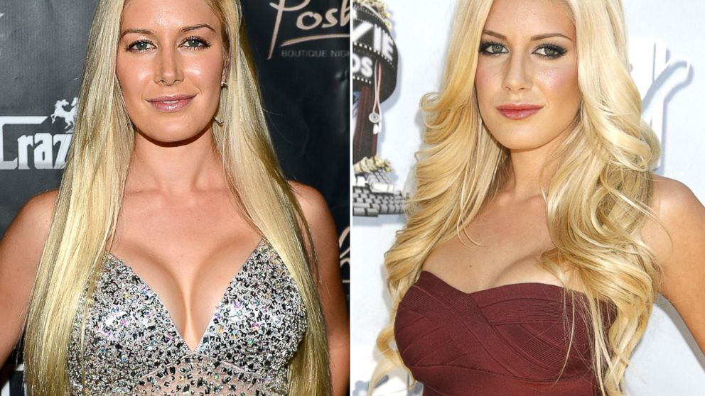 Heidi Montag And Other Celebrities Opting For Breast