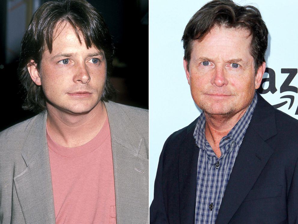 PHOTO: Michael J. Fox