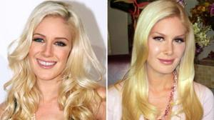 Heidi Montags 10 Plastic Surgeries