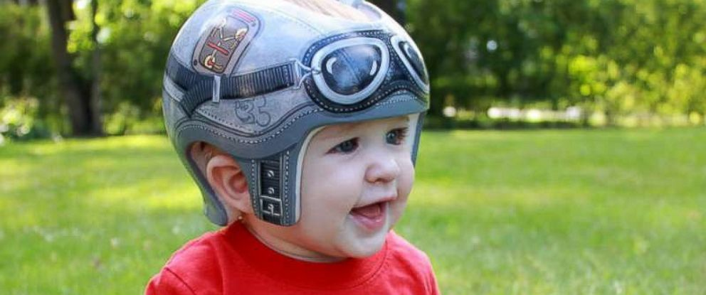 """PHOTO: 7-month-old Brendan Davis, who was diagnosed with plagiocephaly, wears a """"Back to the Future""""-themed helmet created by Paula Strawn."""