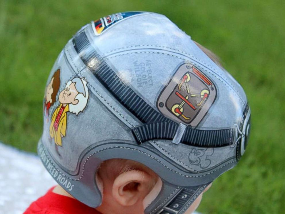 PHOTO: 7-month-old Brendan Davis, who was diagnosed with plagiocephaly, wears a Back to the Future-themed helmet created by Paula Strawn.