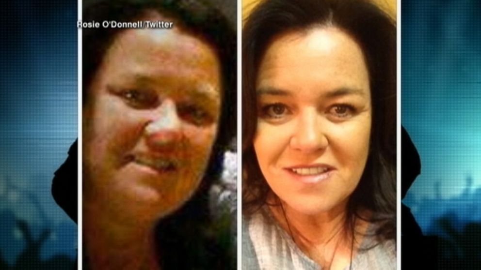 Rosie O'Donnell and Other Extreme Diet Stars - ABC News