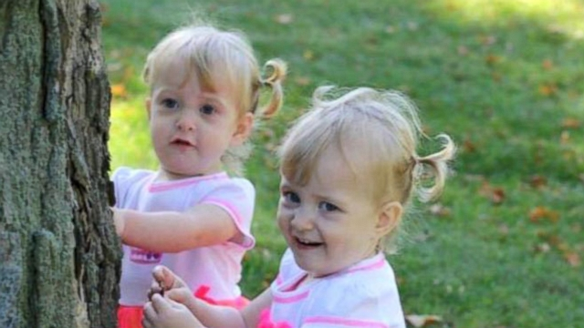 VIDEO: The improbable story of Allison and Amelia Tucker.