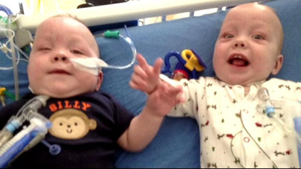 Conjoined Twins 9 Hour Surgery Separates Owen And Emmett Ezell