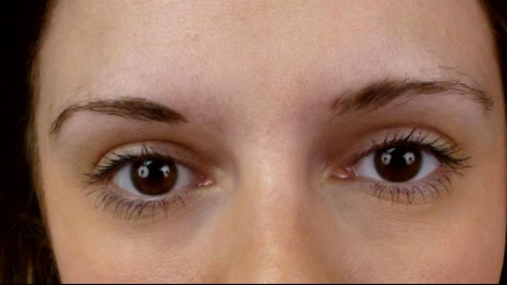 Women turn to eyebrow transplants for fuller brows video for Tattoo eyebrows nj
