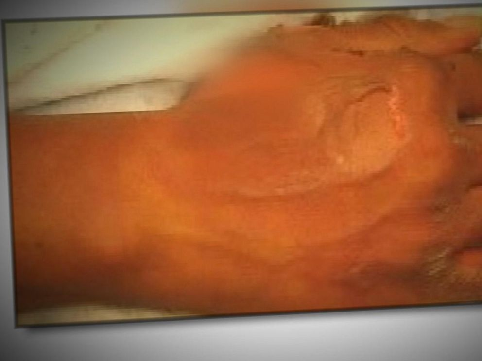 VIDEO: Woman Allegedly Fakes 2nd Degree Burns From McDonalds Coffee