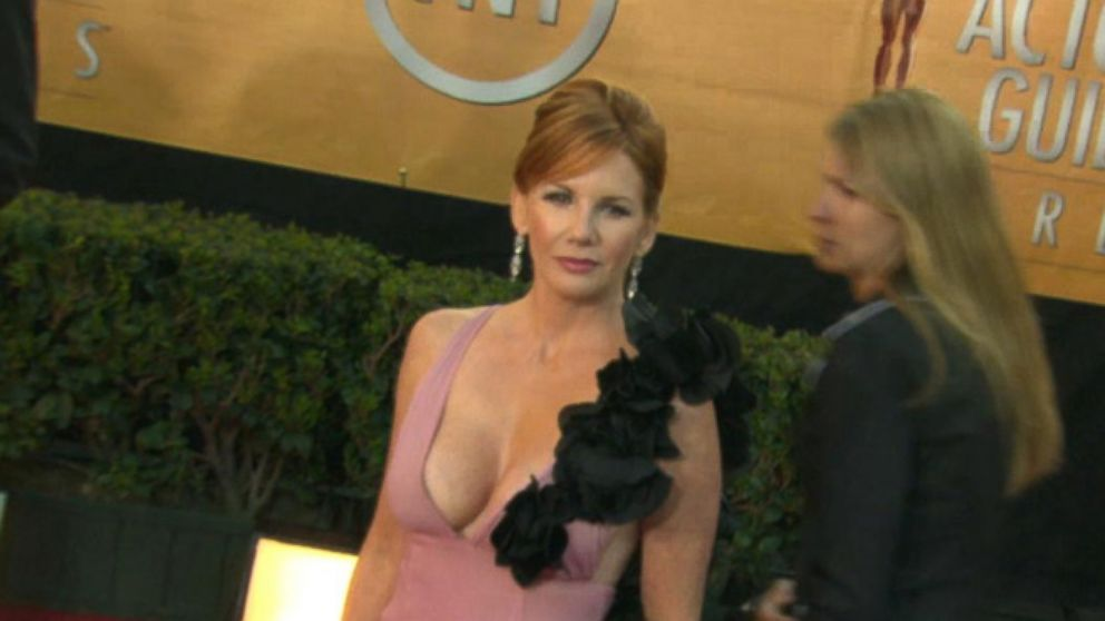 Melissa Gilbert Explains Why She Removed Breast Implants