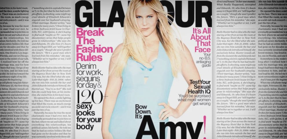 VIDEO: Amy Schumer: I Have Cellulite. And I Still Deserve Love