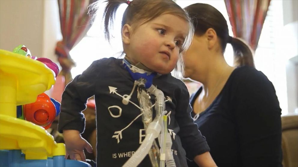 Surgery Saves Toddler With Rare Heart Defect From Needing a Transplant