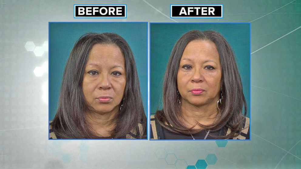 Is Popular Under Eye Bag Solution To Be Believed Gma Tries It
