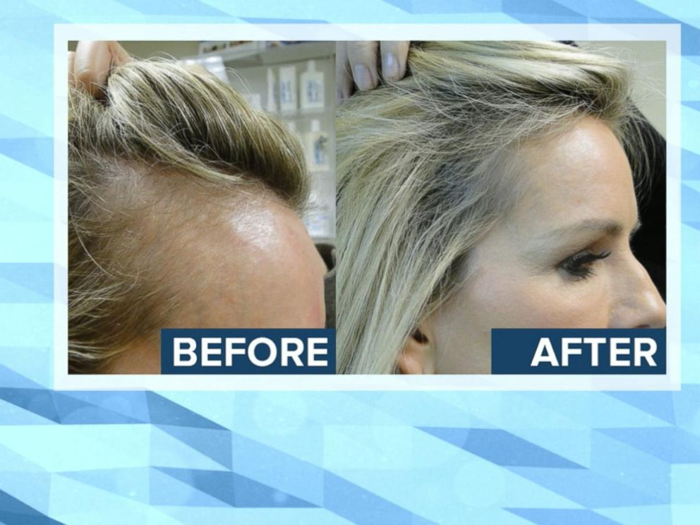 New Treatment Offers Hope For Women With Hair Loss Abc News