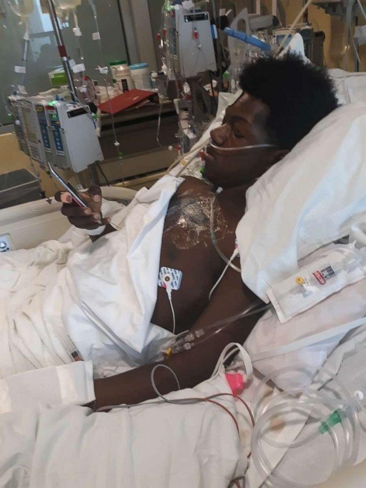 Marquis Davis underwent the surgery at Cincinnati Children's Hospital in Ohio, on Dec. 2.