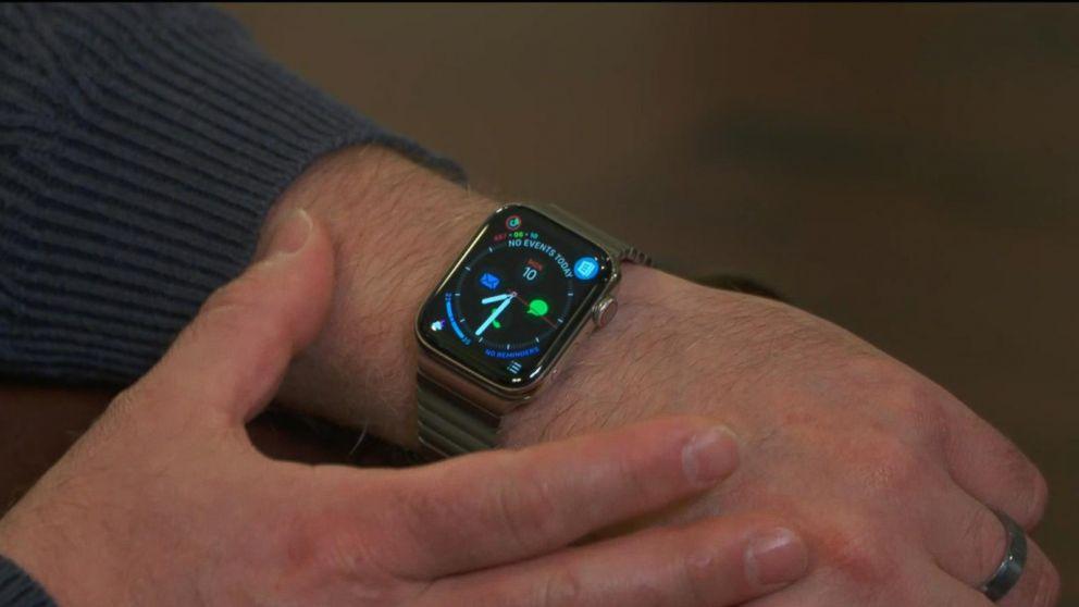 An Apple Watch told a 46-year-old man he had an irregular