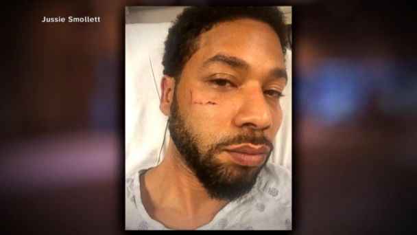 Chicago police chief speaks out on Jussie Smollett case