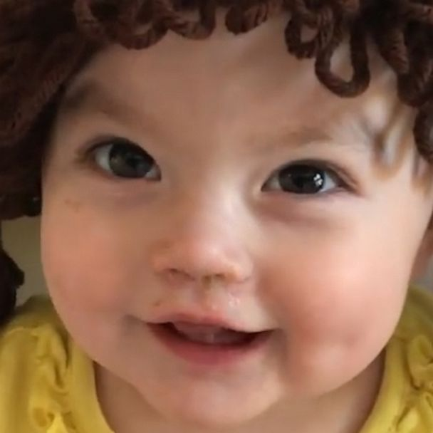 cabbage patch values