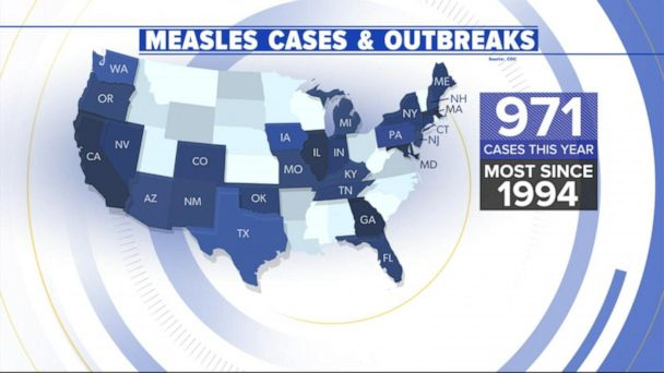 Alarming new numbers in the measles outbreak