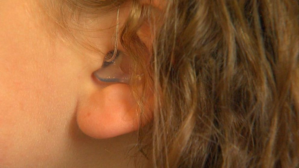 How parents are fighting to get insurance to cover hearing aids