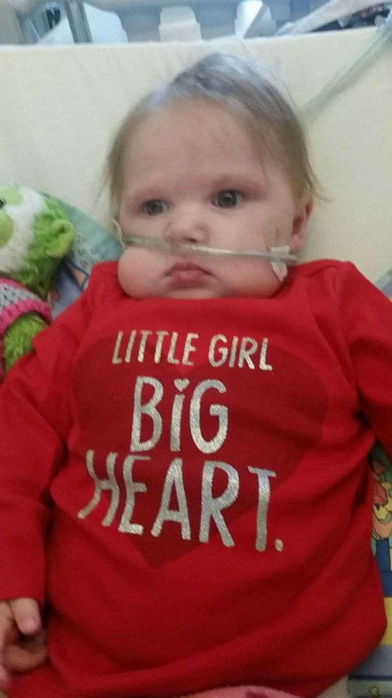 PHOTO: Lola Bond was the recipient of a life-saving heart transplant.
