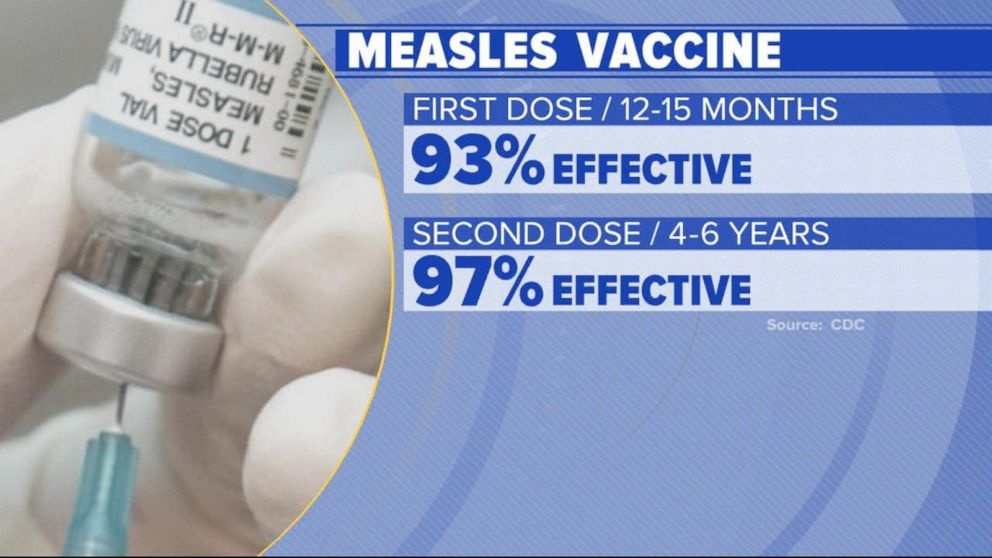 What parents should know about measles outbreak as kids head back to school