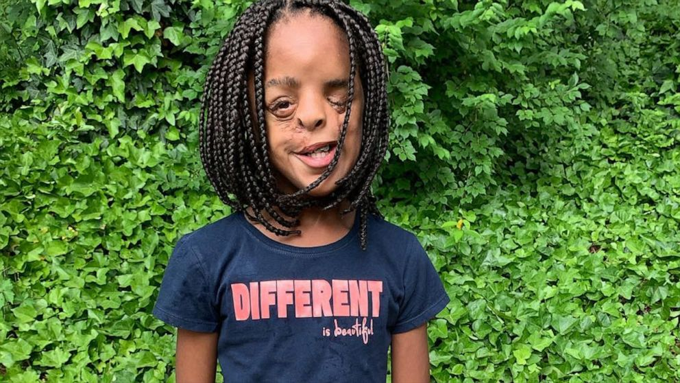 11-year-old girl teaches valuable lesson about embracing what makes you different