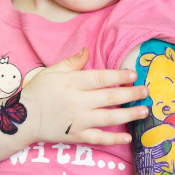 3-year-old fighting cancer gets magical Disney \'tattoos\' to be just ...
