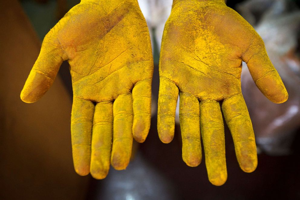 PHOTO: A workers hands are covered with tumeric powder at a spice store in Mumbai, Sept. 5, 2012.