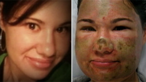 Woman Badly Burned in Acid Attack Still Happy