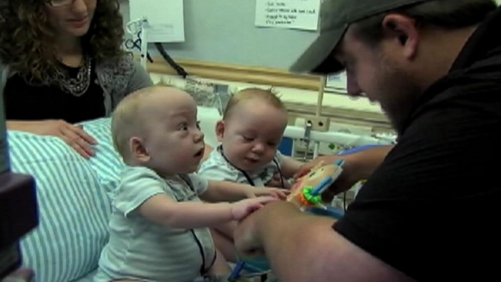 Conjoined Twins Leave Dallas Hospital And Head To Rehab Abc News