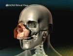 VIDEO: Virtual view of partial face transplant.