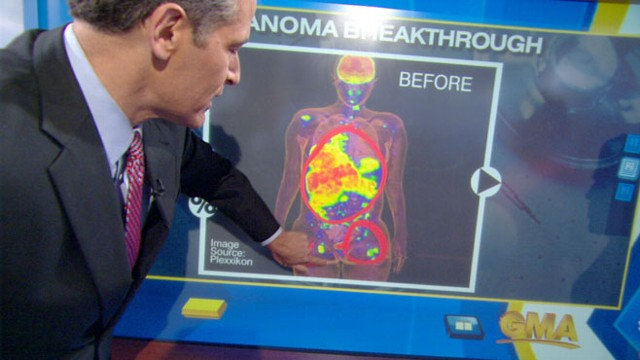 VIDEO: Dr. Richard Besser explains why recent medical breakthroughs are important.