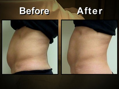 VIDEO: A before and after picture of some ones stomach.