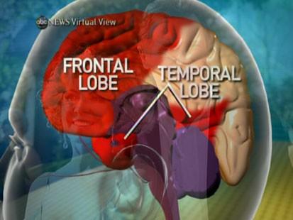 VIDEO: Dr. Jam Ghajar explains the impact the Natasha Richardsons fall had on her brain.