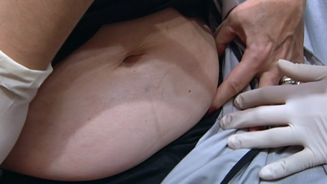 VIDEO: Procedures net positive result, improving patients appearance with no incision.