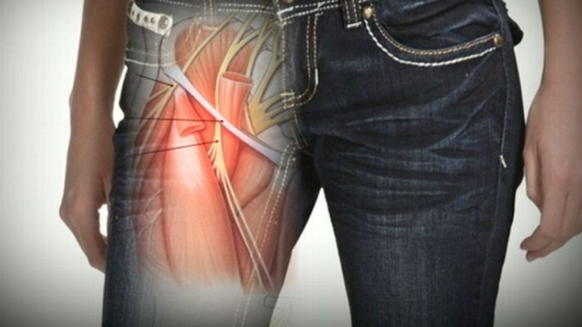 Tight Skinny Jeans Might Cause Nerve Damage Video