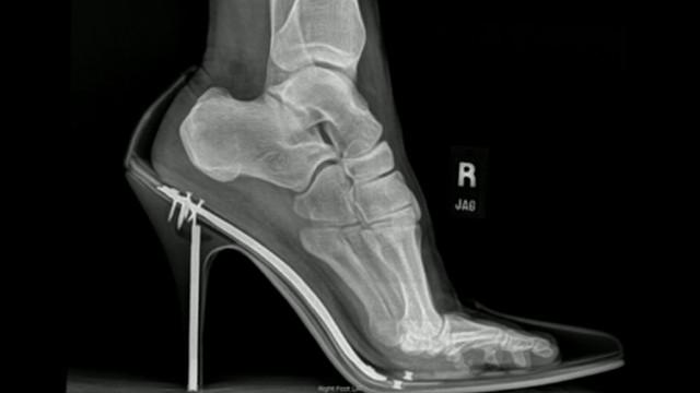VIDEO: High Heel Shoe Hazards