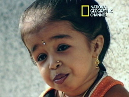 VIDEO: The smallest girl in the world suffers injuries in her legs.