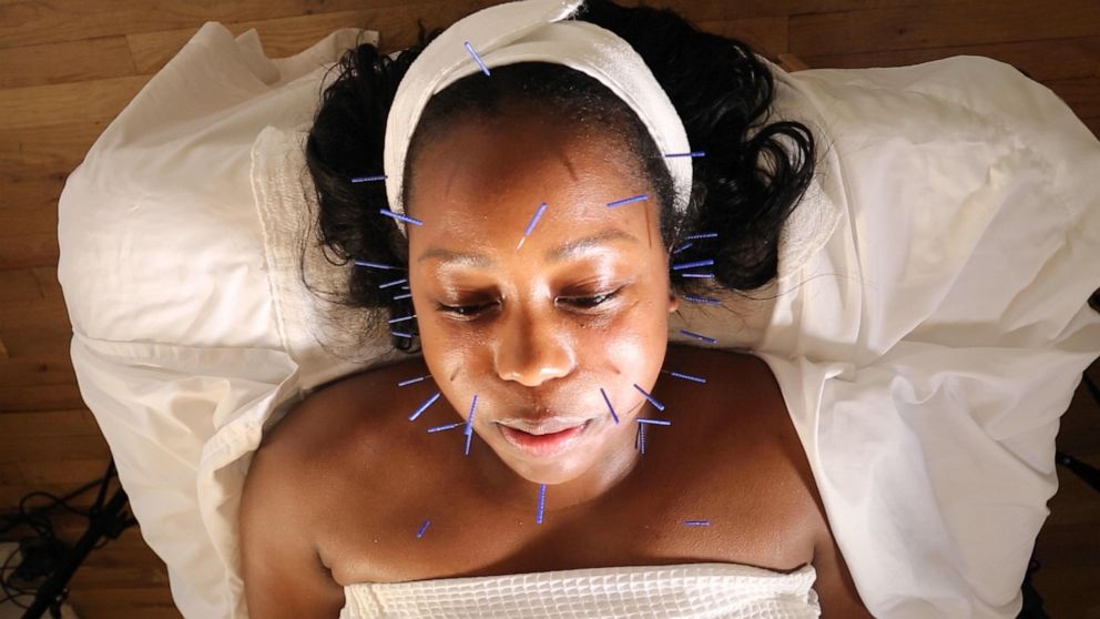 PHOTO: Digital style and beauty reporter Jacqueline Laurean Yates tried facial acupuncture to give the treatment celebrities love a true test drive.