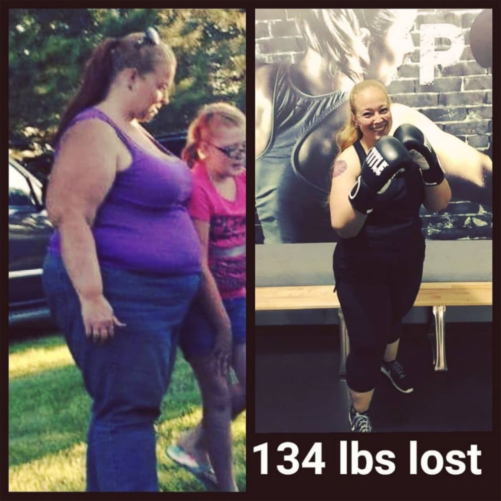 PHOTO: Angie Phillips shared these images from her weight loss journey after losing 134 pounds.