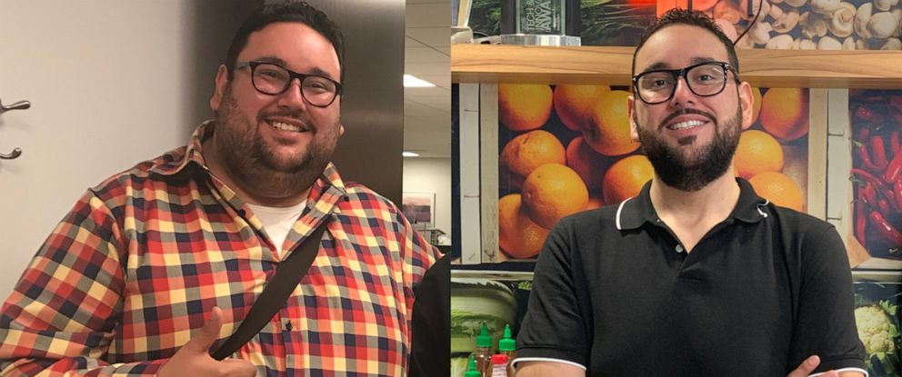 PHOTO: Antonio Martinez, of Chicago, is pictured before, left, and after his weight loss.