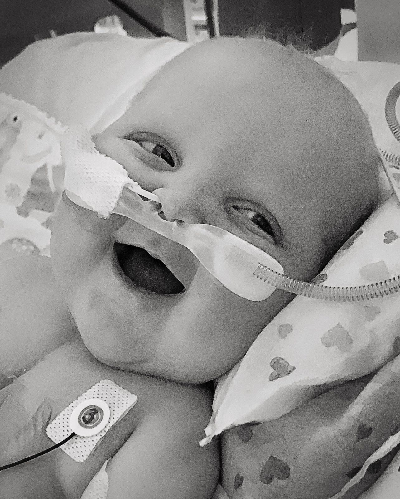 PHOTO: Teddy Nelson has spent 185 days in the hospital. Teddy was born with a congenital heart defect called hypoplastic left heart syndrome. On Nov. 13, the 6-month-old had his second open heart surgery.